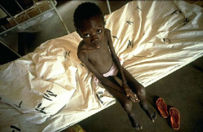 Children eight years in hospital Budango, Tanzania. During treatment for tuberculosis, he was infected with HIV